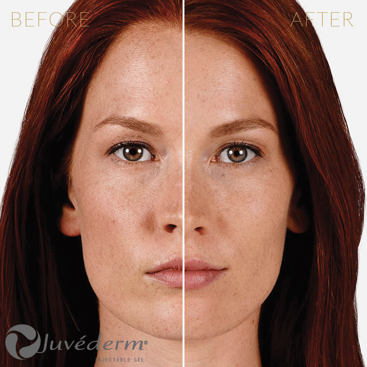 Injectables-Juvederm