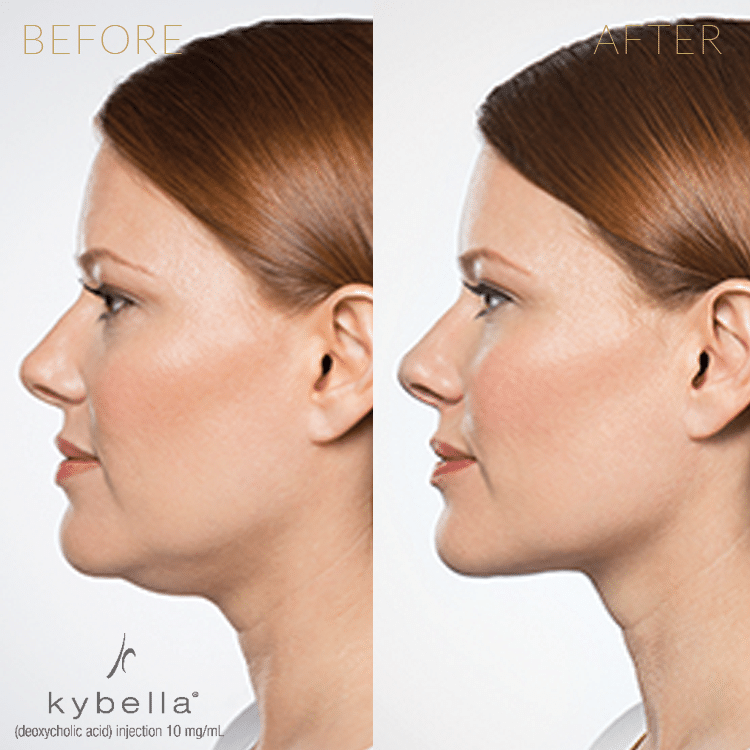 Injectables-Kybella