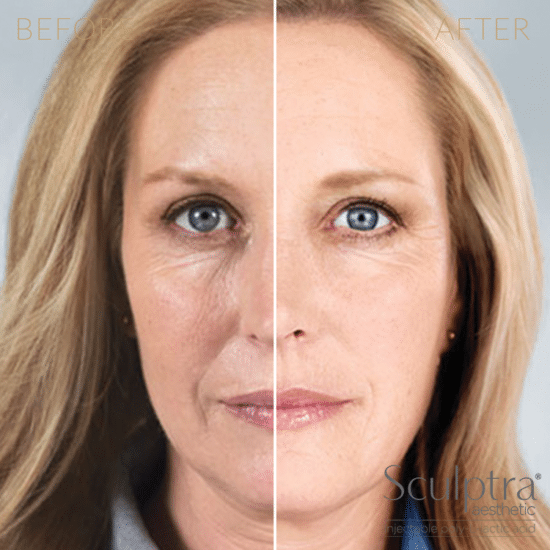 Injectables-Sculptra