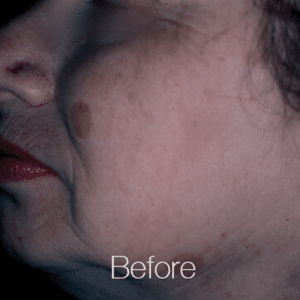 Pigment-Correction-Before1