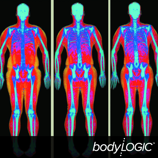 BodyLogic-DXA-Scan