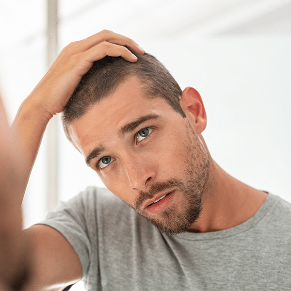 Hair Loss Prevention tips Plantation FL