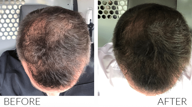 BEFORE-AND-AFTERS-HairLoss1