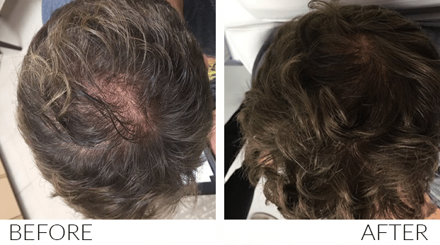 BEFORE-AND-AFTERS-HairLoss2