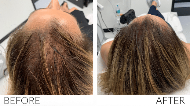 BEFORE-AND-AFTERS-HairLoss3